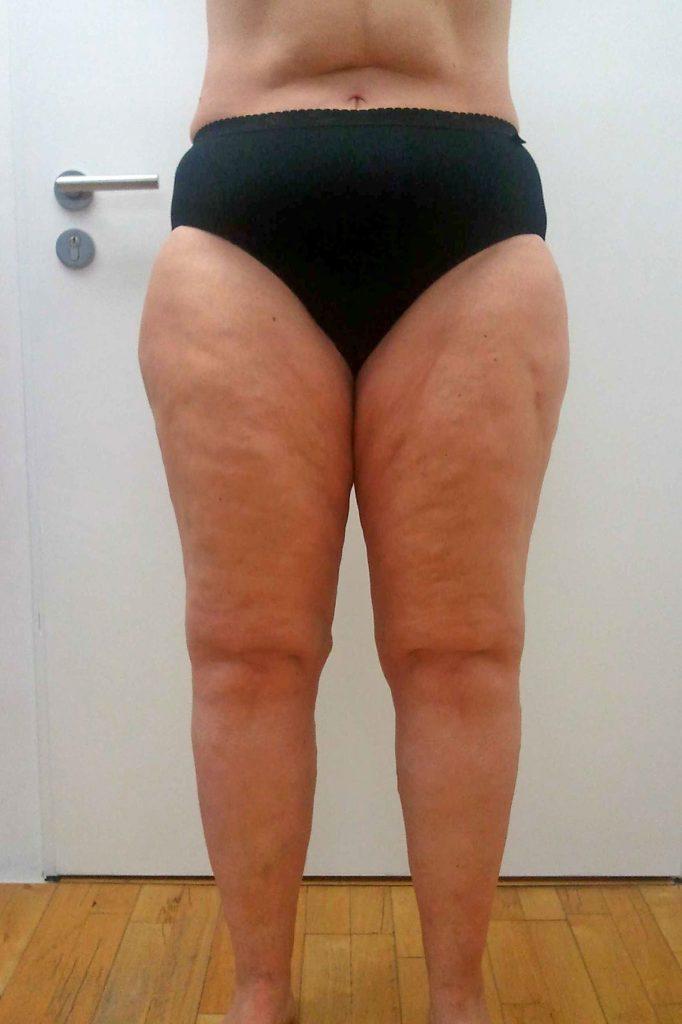 Diese Proportionen sind typisch für Frauen, die von der Fettverteilungsstörung Lipödem